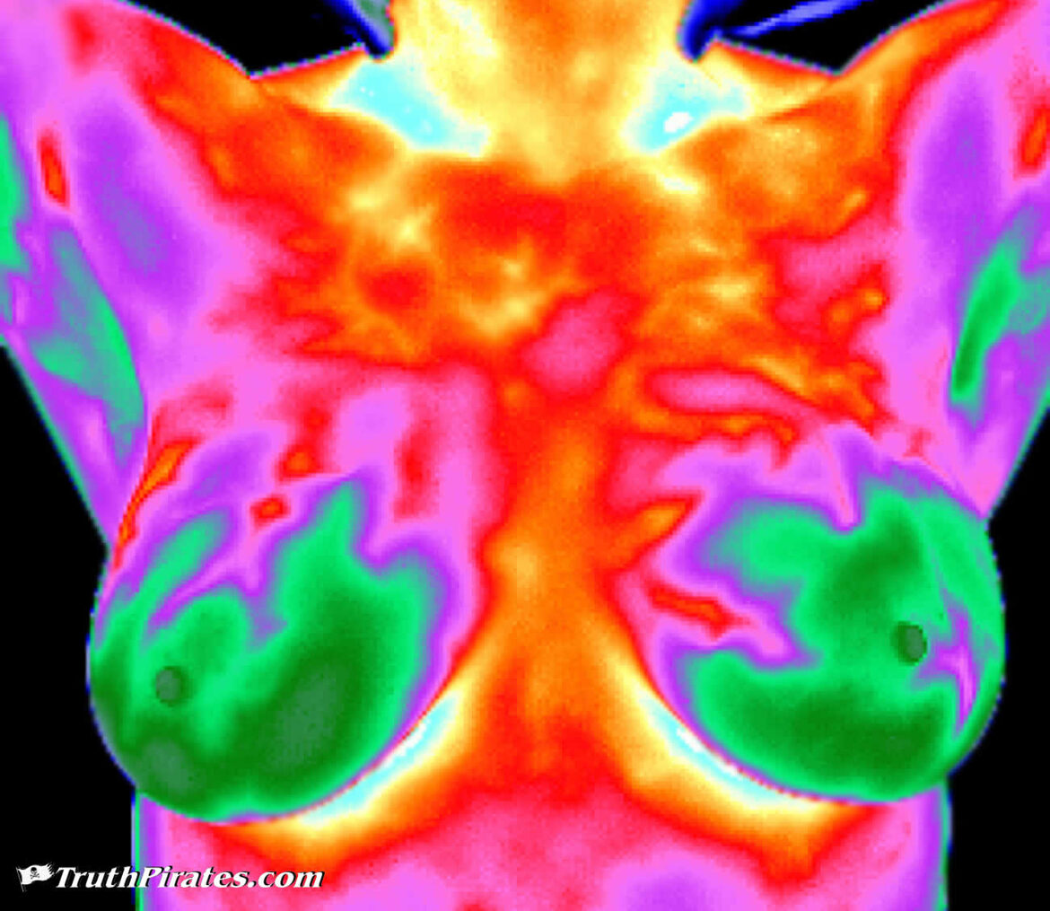 thermography vs mammography
